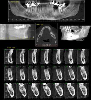 Laboratório de Odonto da USP é pioneiro no uso de imagens 3D